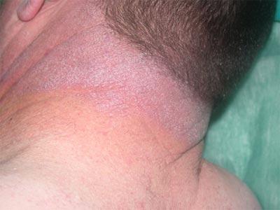 dertmatitis